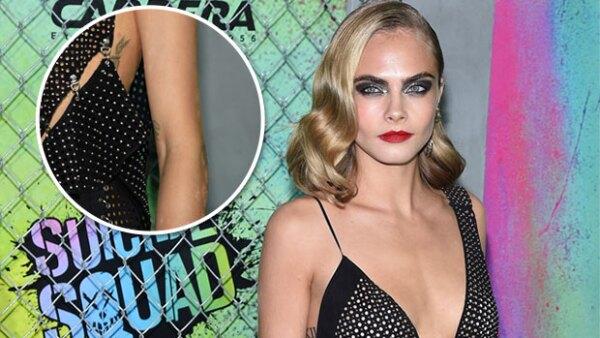El estrés está acabando con la modelo y actriz, pues durante la premiere de Suicide Squad, su piel se vio muy afectada por psoriasis.