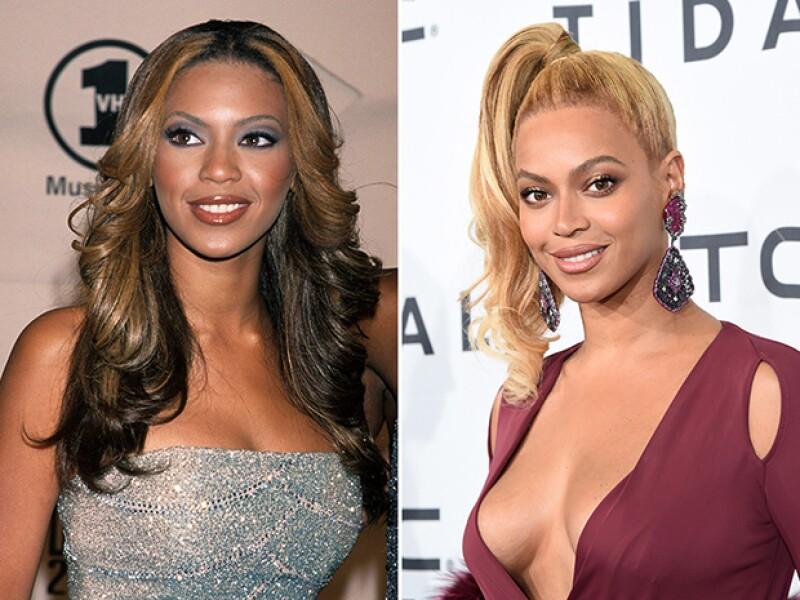 Beyoncé también ha sido señalada por blanquearse la piel.
