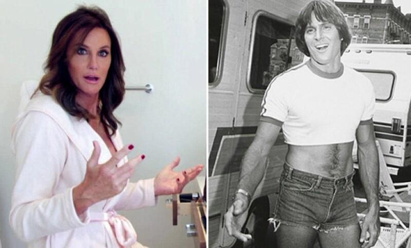 La transformación de Bruce Jenner en Caitlyn requirió una considerable suma de dinero, para que los detalles de su nuevo rostro quedaran impecables.