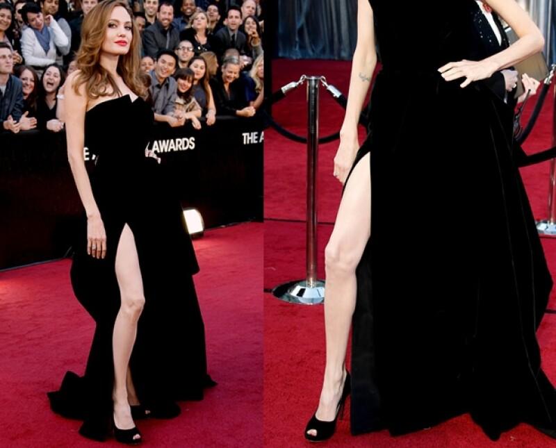 La delgadez de la pierna de la actriz fue uno de los temas más comentados entre los lectores de Quien.com.