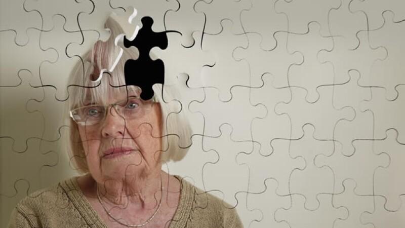 Alzheimer o perdida de memoria por envejecimiento