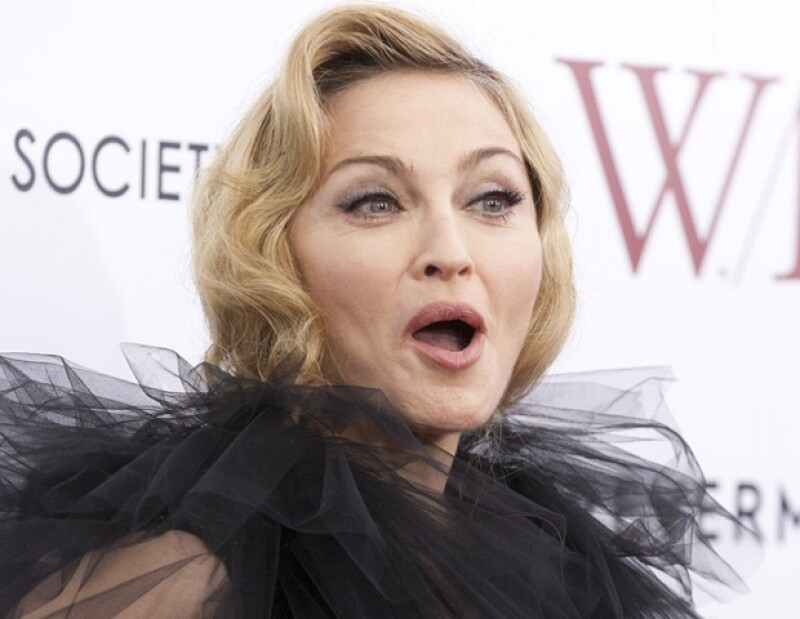 Madonna compartió con todos sus seguidores, los sacrificios que realiza para ofrecer espectáculos de calidad.