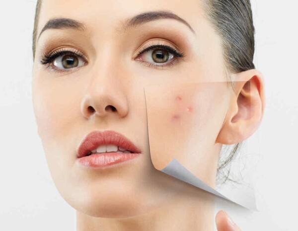 Existen muchos tipos de acné. Algunos son más severos que otros y cada uno requiere un tratamiento distinto.