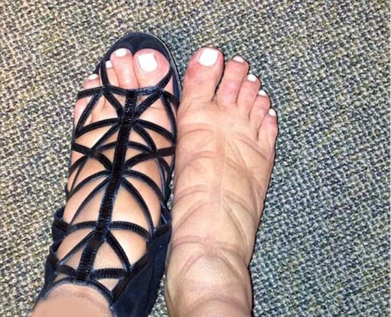 La estrella de reality show confesó que debido a que sus pies se han hinchado, se ha visto en la necesidad de comprar tallas más grandes pero ¿qué pasa cuando los forza?