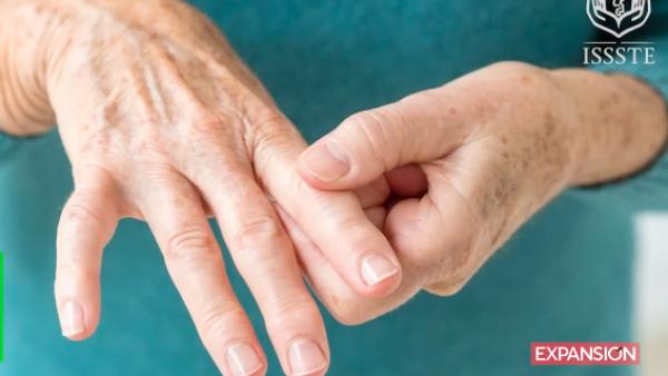 ¿Qué es la artritis reumatoide y cuáles son sus síntomas?