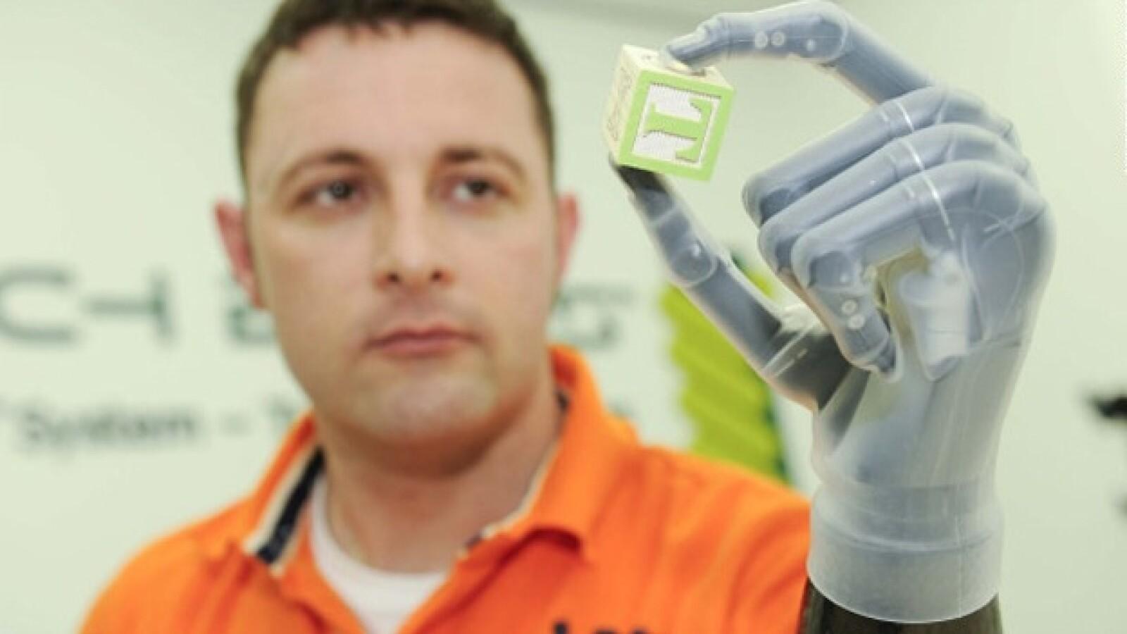 protesis operada cerecbro chip