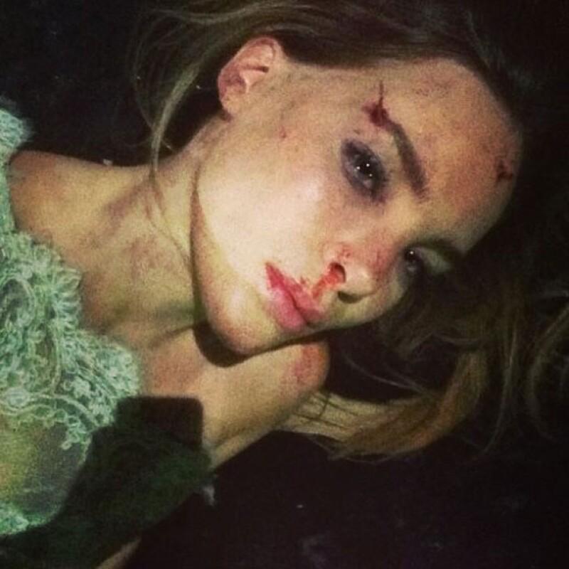 La cantante compartió en Instagram una imagen en la que la vemos severamente golpeada y con marcas de sangre, dijo que había tenido accidente; sin embargo, la fotografía es parte de un nuevo video.