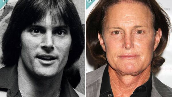 Bruce Jenner fue campeón de Juegos Olímpicos y el galán de moda, pero la década de los 80 lo impulsó a realizarse rinopastias, liftings facial e implante de barbilla. Ahora quiere retirarse la manzana de Adán.