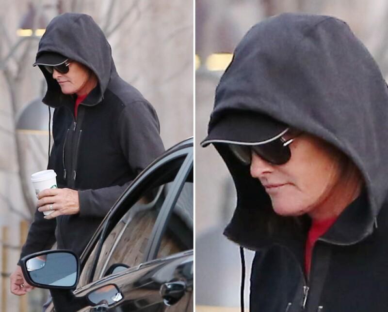 Los paparazzi captaron al polémico ex esposo de Kris Jenner en Los Ángeles esta mañana, y un zoom pudo hacer notar una gran cicatriz en los límites de su cara. ¿Se habrá operado?
