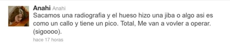 La ex RBD aseguró a sus fans que tendrá que volver a operarse la nariz por cuestiones de salud.