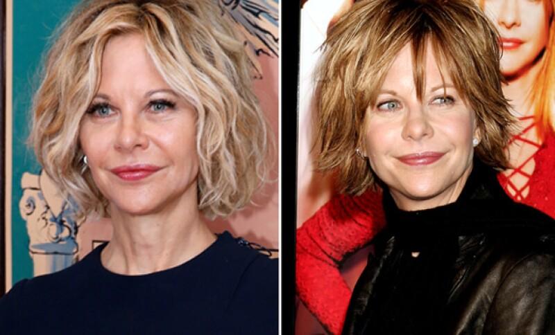 Durante los años, la actriz ha ido cambiando, pues desde siempre expresó su gusto por las cirugías plásticas.