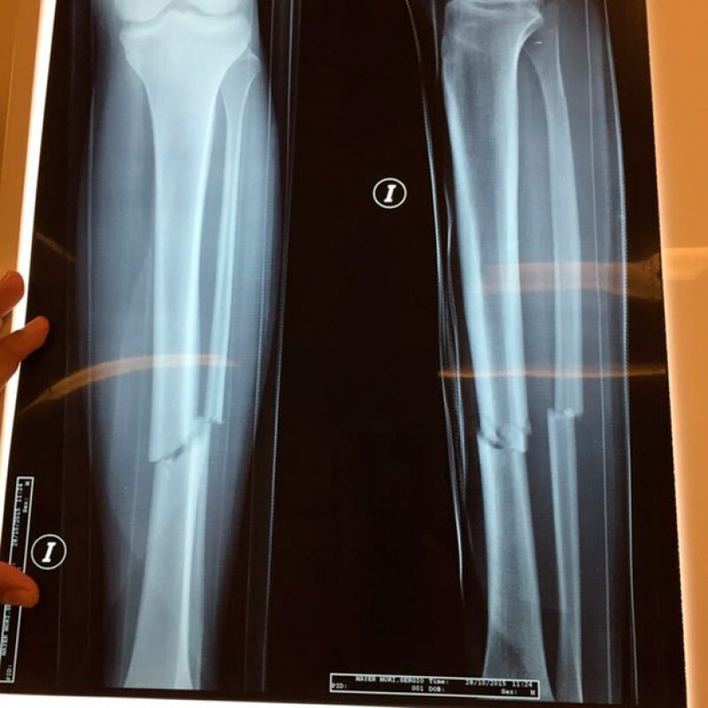 Esta es la radiografía de la fractura que tuvo Sergio Mayer Mori.