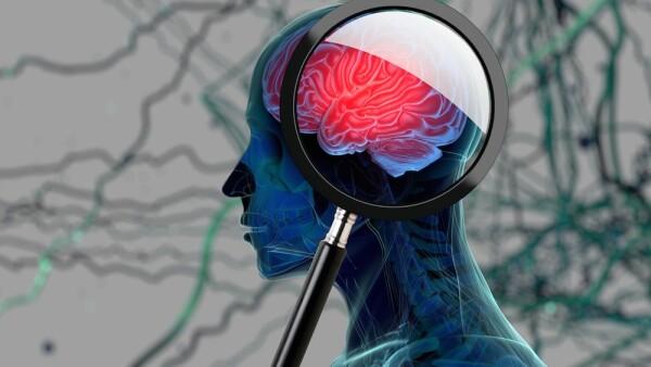 Estrés y encogimiento de cerebro
