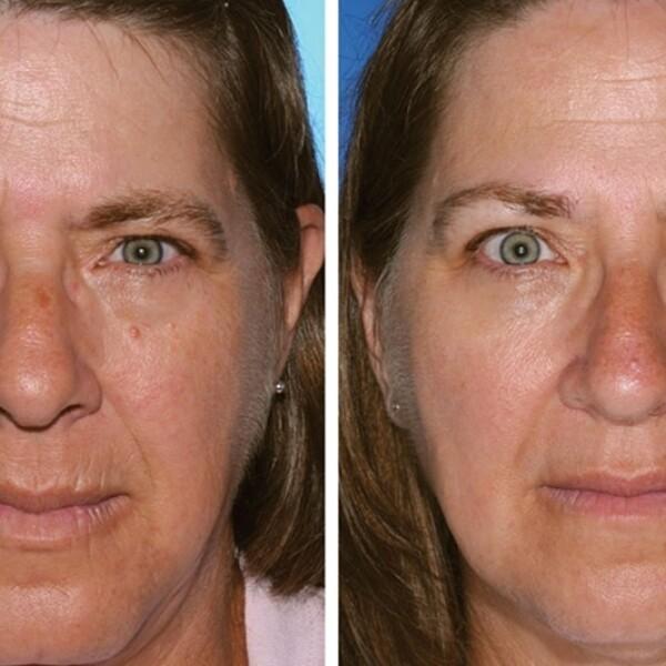 La gemela en la izquierda ha fumado 17 años más que la gemela en la derecha Se puede notar la diferencia en las arrugas de los labios