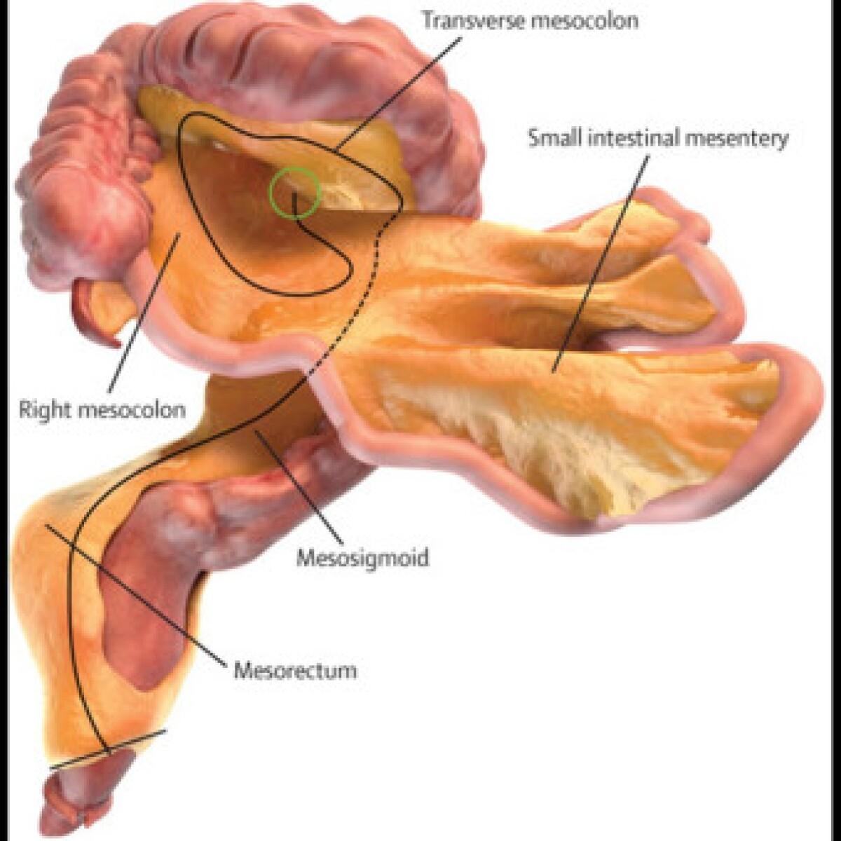 Conoce el \'nuevo\' órgano que tiene el cuerpo humano, mesenterio