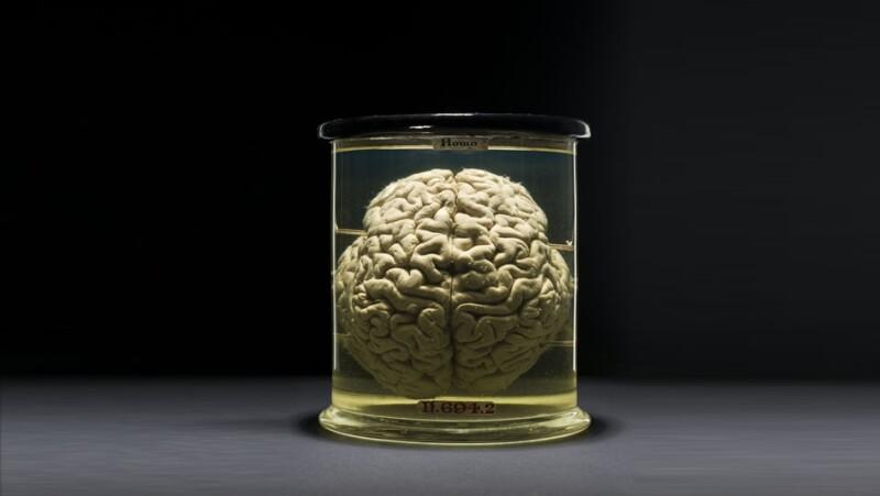 extraordinario, cerebro, venta, ebay, indiana, estados unidos, venta, electronica, robo, prohibido