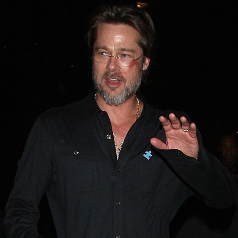 En su asistencia a un concierto de beneficencia, el actor apareció con un fuerte moretón en la cara producto de una caída.