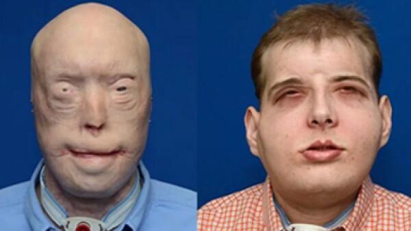 El paciente deberá tomar medicamento toda su vida para que su cuerpo no rechace la cara implantada. (Foto: Universidad de Nueva York/Cortesía)