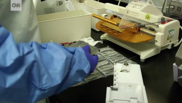 Células madre: nueva esperanza para pacientes con autismo