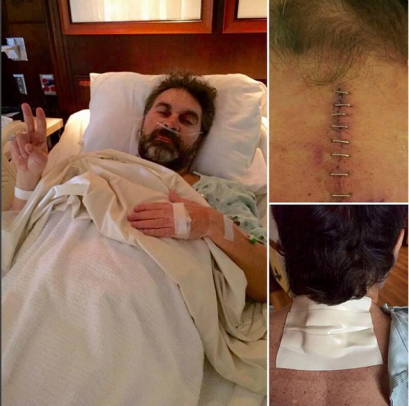 Mijares mostró en foto su herida tras la cirugía.