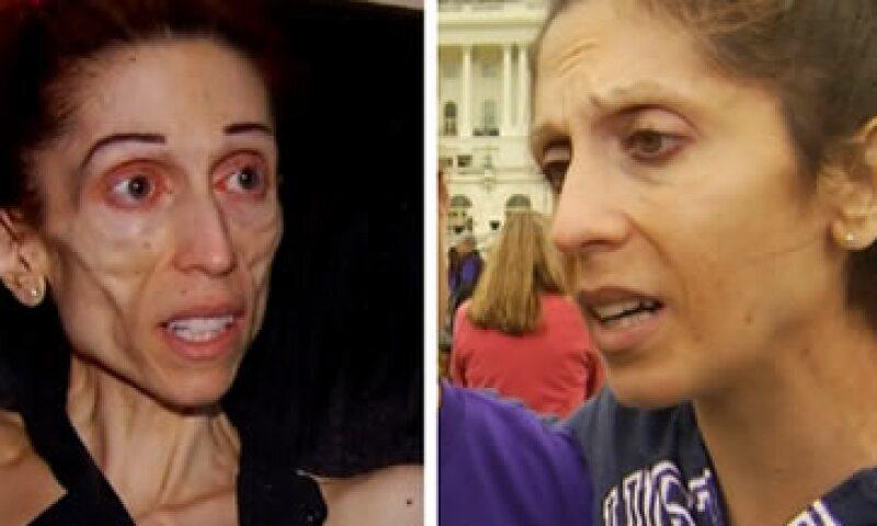 La mujer ahora es una activista de los derechos a la salud para personas con anorexia nerviosa (Foto: Twitter/NBC Los Ángeles)