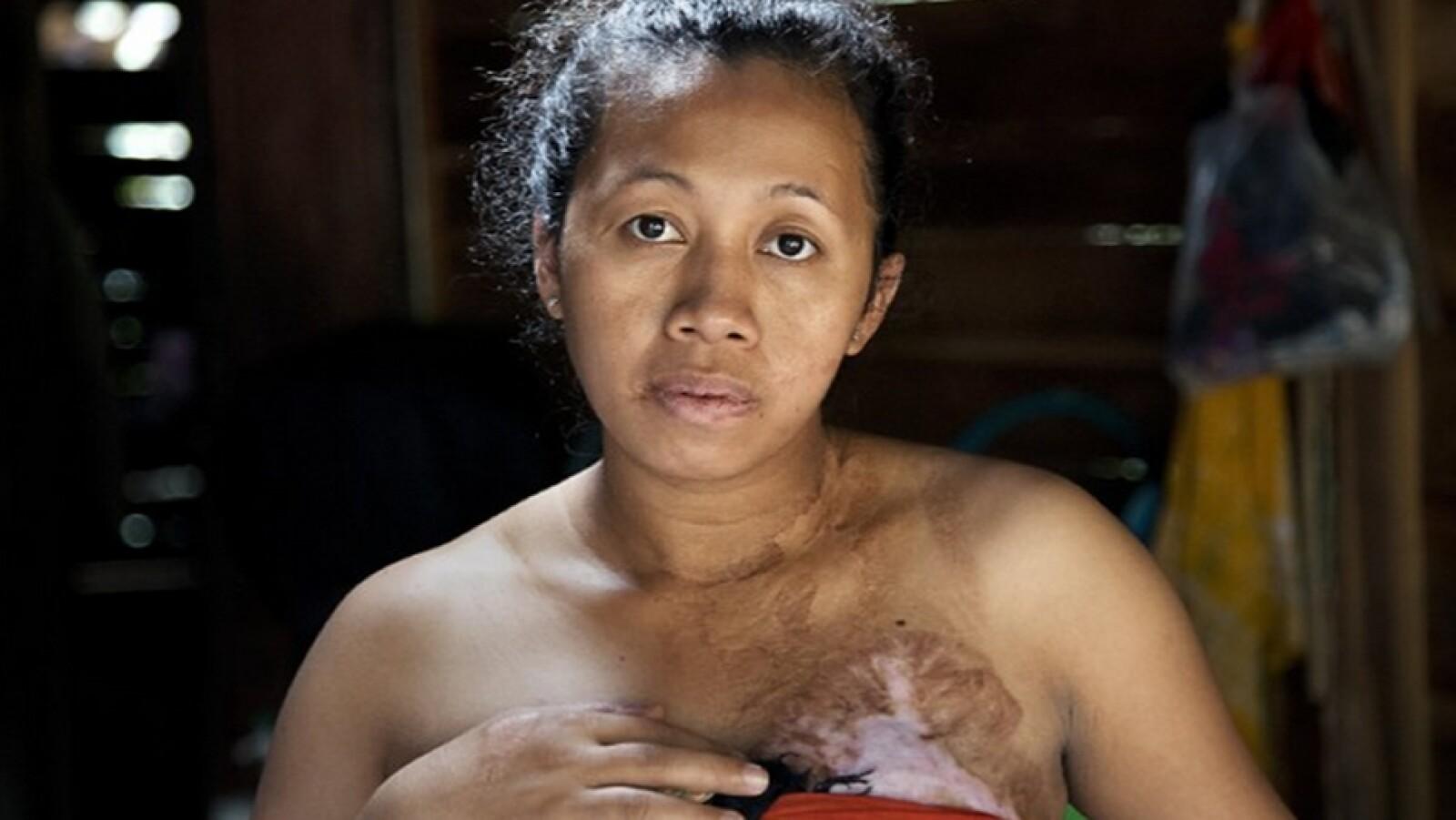 gale mujeres en asia 2