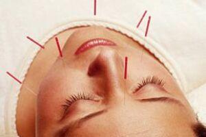 Básicamente tu acupunturista te citará como mínimo una vez por semana para la sesión, en donde colocará agujas en puntos específicos de tu cuerpo.