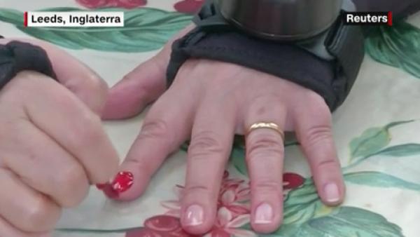 La vida de los pacientes con Parkinson podría cambiar gracias a estos guantes