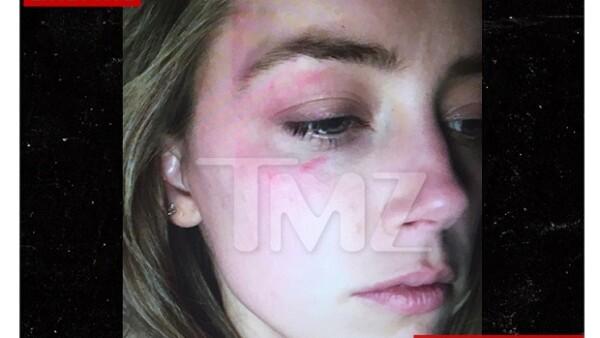 Según informa TMZ, la actriz mostró una imagen en la corte en la que aparece con la cara golpeada, alegando que el actor había sido el responsable de ello.