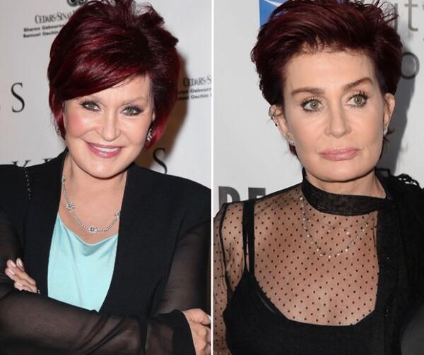 La imagen de la izquierda fue tomada en el año 2012, es notorio el cambio en la cara de la presentadora.
