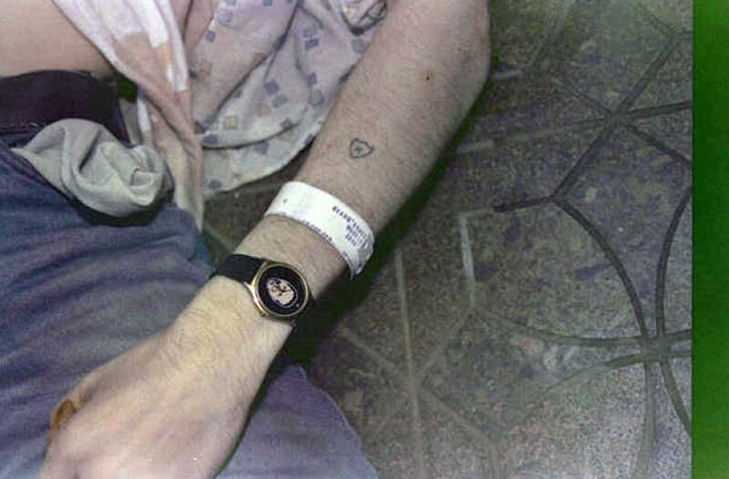 Una toma de su brazo en el que se alcanza a ver el brazalete de cuando estuvo en el centro de rehabilitación para dejar su adicción por la heroína.