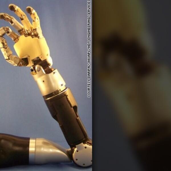 brazo bionico operado cerebro