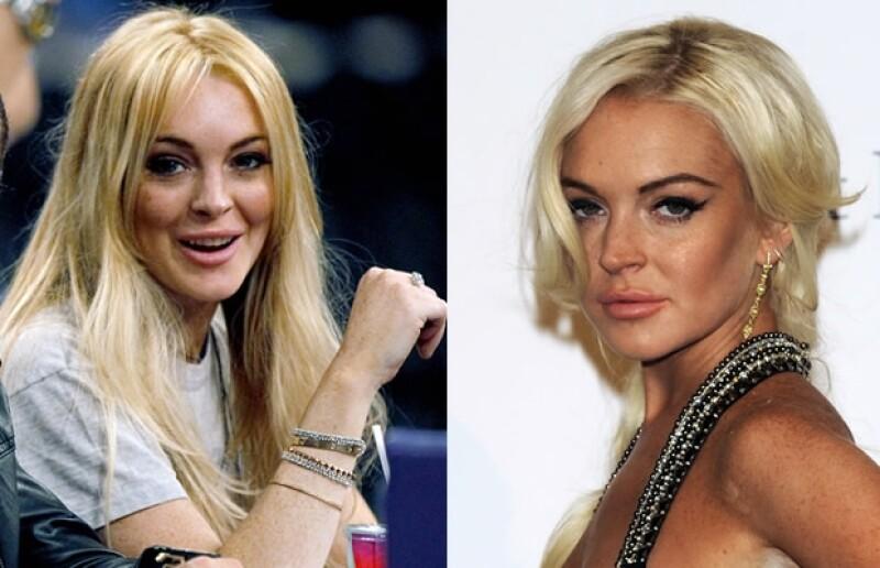 A sus apenas 25 años la actriz se ve muy diferente físicamente debido al abuso de procedimientos estéticos en su rostro y hoy quedan pocos rasgos de aquella niña que vimos en `Juego de gemelas´.