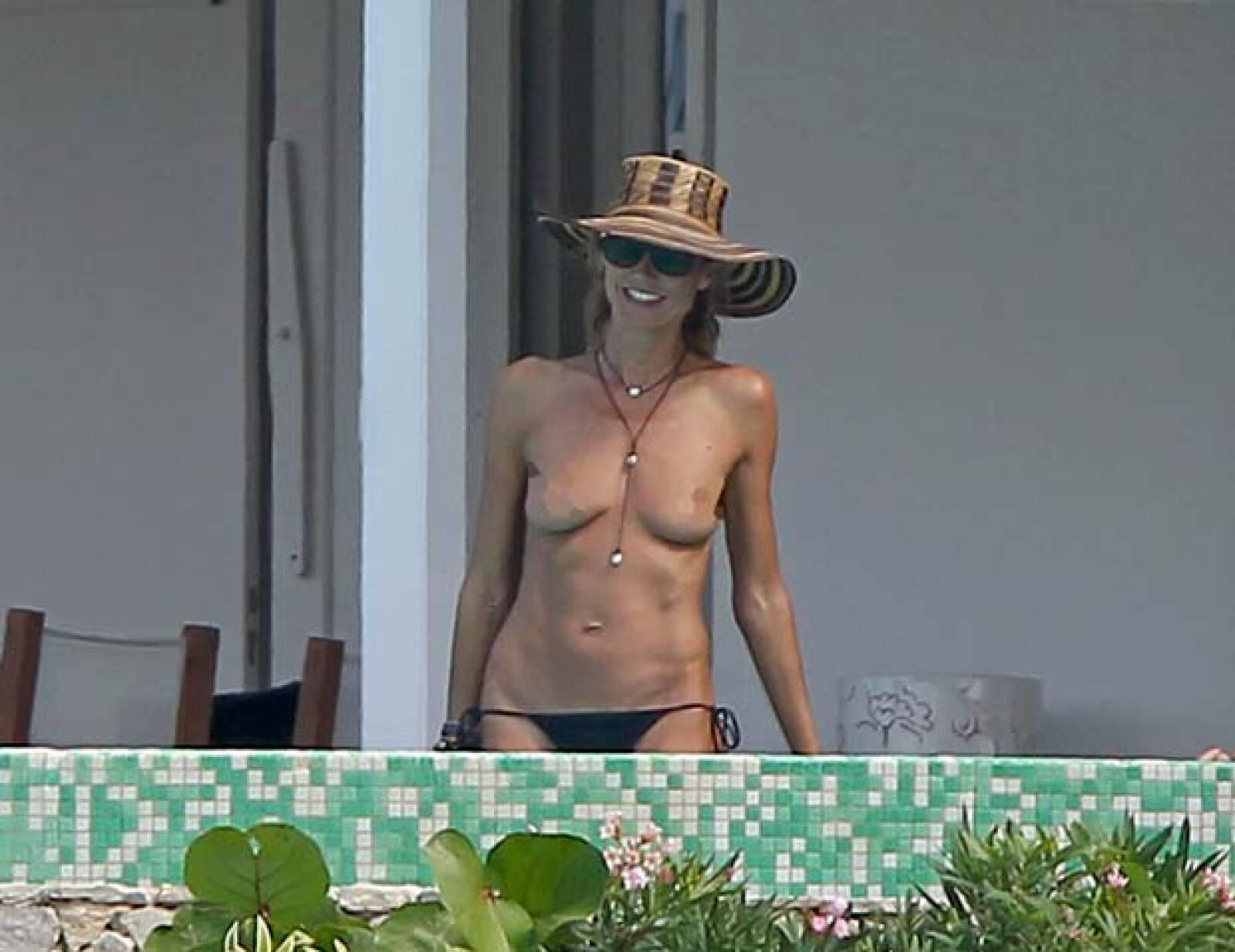 heidi-implant-topless-pics