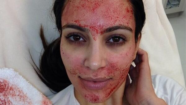 Kim con el rostro lleno de sangre.