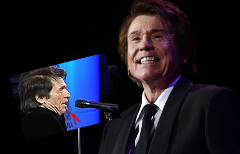 El cantante español llenó el escenario de la Quinta Vergara y se llevó el show no tanto por su música, que fue galardonada, sino por la pérdida de uno de sus molares.