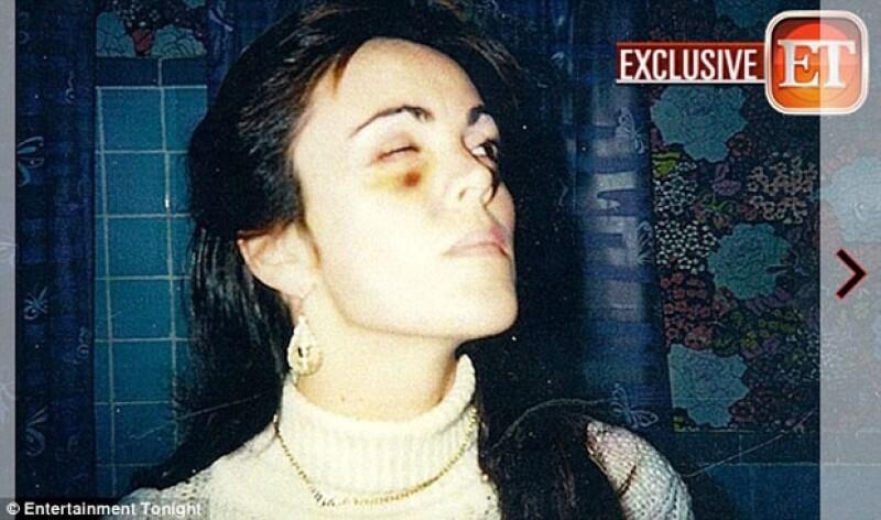 El ojo morado fue producto de los golpes de su ex-esposo, según la entrevista concedida a New York Daily News.