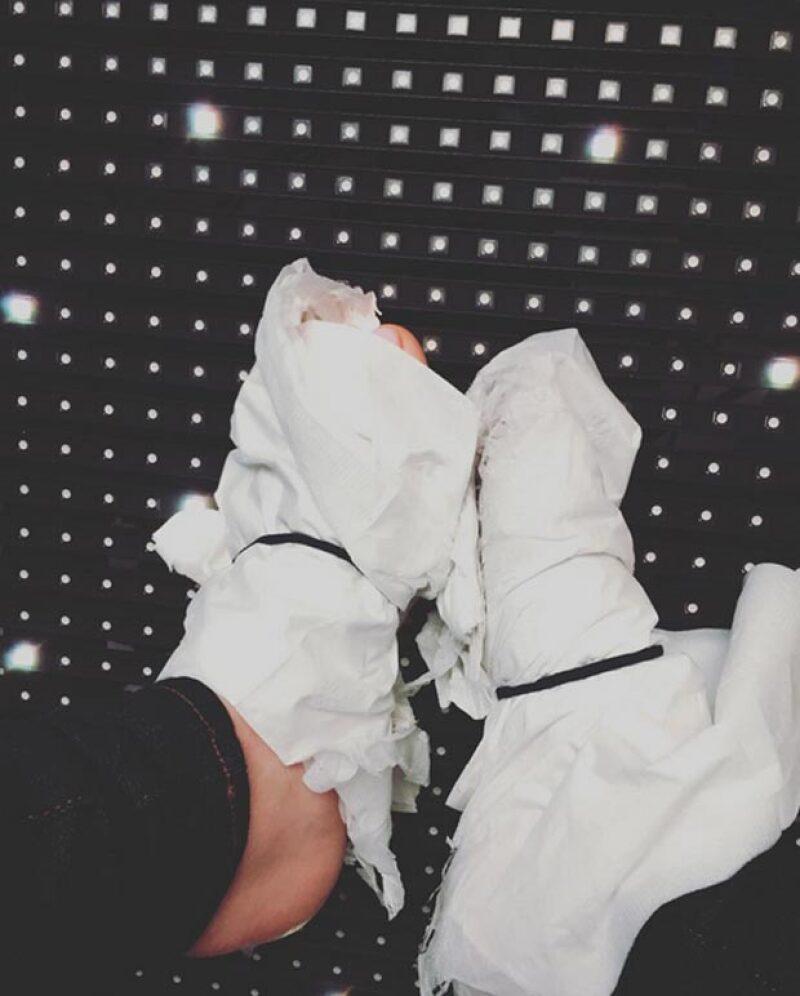 A Blake le dolían tanto los pies que decidió improvisar un calzado más cómodo.