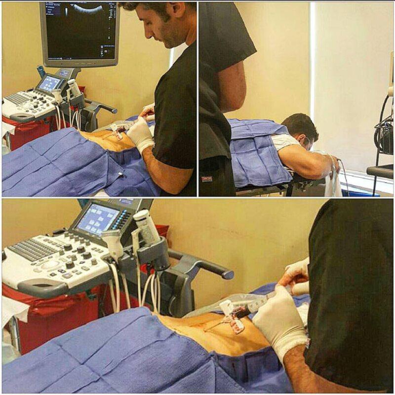 Asimismo mostró el procedimiento de la extracción de las células madre, mismas que le fueron inyectadas más tarde.