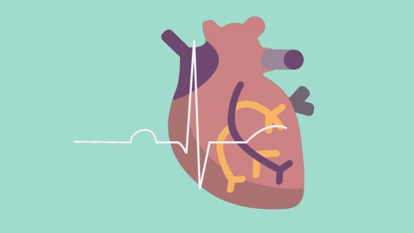 Lo que necesitas saber sobre un infarto