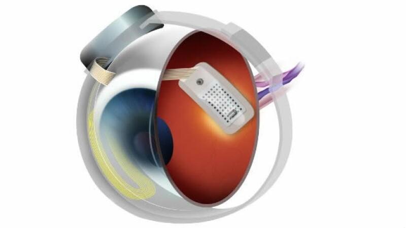 Una prótesis se implanta quirúrgicamente en la superficie de la retina.