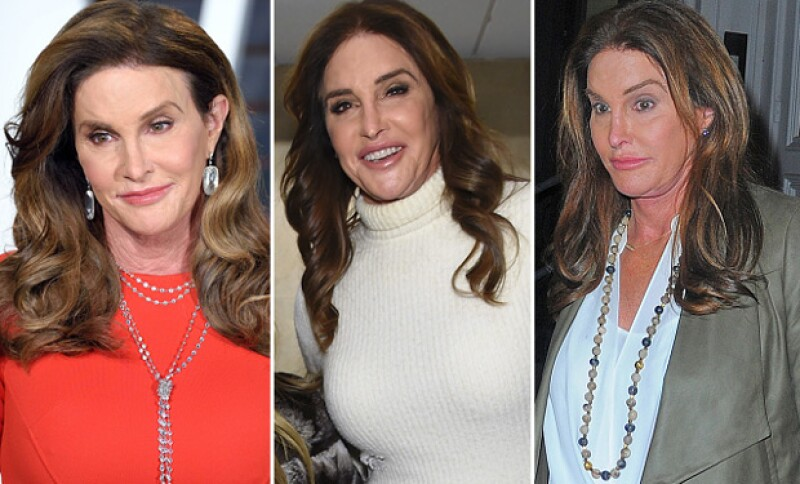 Dos reconocidos cirujanos plásticos han advertido que la cara de la estrella de reality está mostrando demasiadas evidencias de abuso en tratamientos estéticos. ¿Ya viste las últimas fotos?