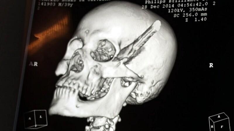 Radiografia brasileño cuchillo cabeza