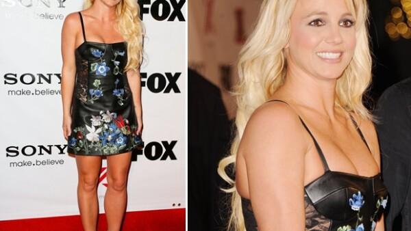 """La cantante acudió ayer a la fiesta organizada por el show """"The X Factor"""" ahí la juez lució una piel dañada por una supuesta enfermedad que padece, psoriasis."""