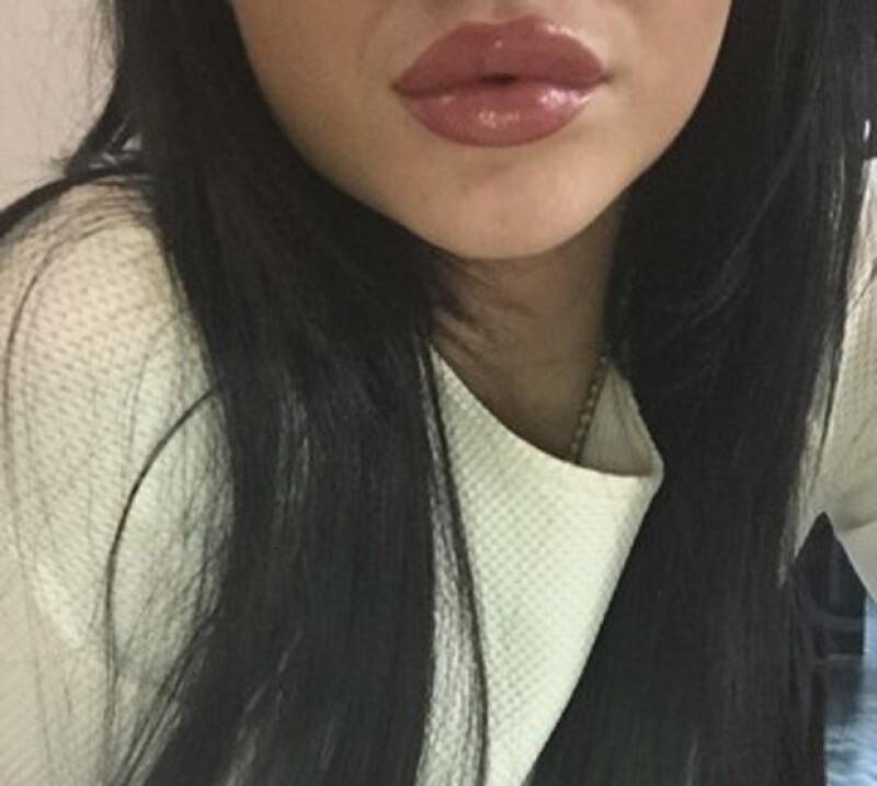 Esta fue otra de las imágenes que compartió Jenner donde el crecimiento de sus labios es más que evidente.