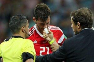 Los rusos inhalaron amoniaco durante la Copa del Mundo