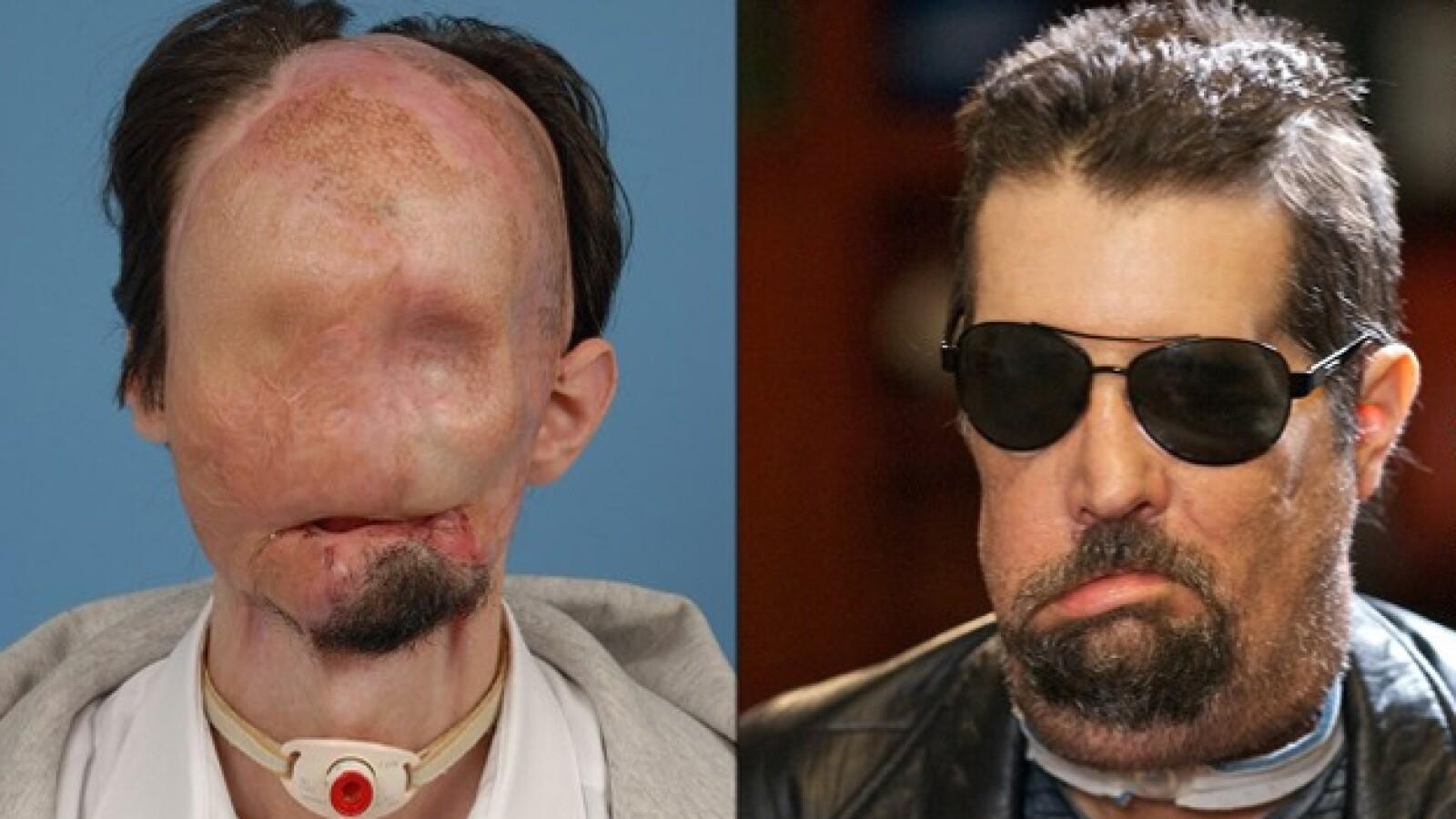 Dallas Wiens trasplante completo de cara 2008