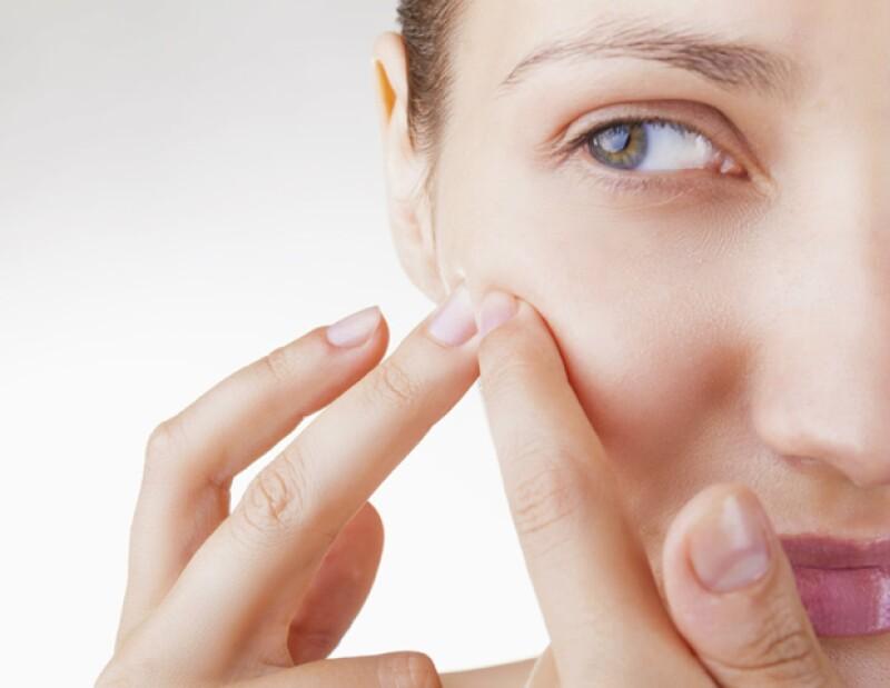 El acné es una condición que se caracteriza por la inflamación de las glándulas sebáceas en la piel.