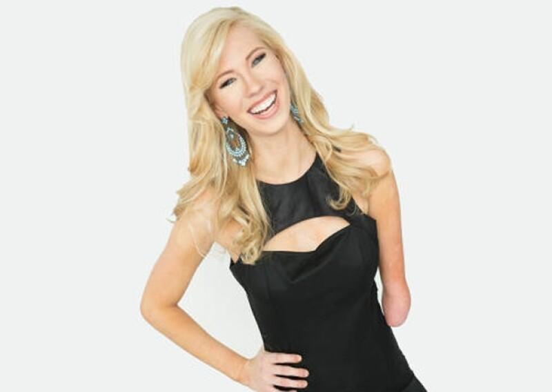 Nicole Kelly de 23 años quien naciera con una malformación en su brazo izquierdo, dio ejemplo de confianza y seguridad en el certamen de belleza el Estado, en el cual se coronó como Miss Iowa 2013.