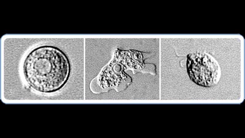 Naegleria fowlleri amiba